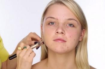 bouttton-acne
